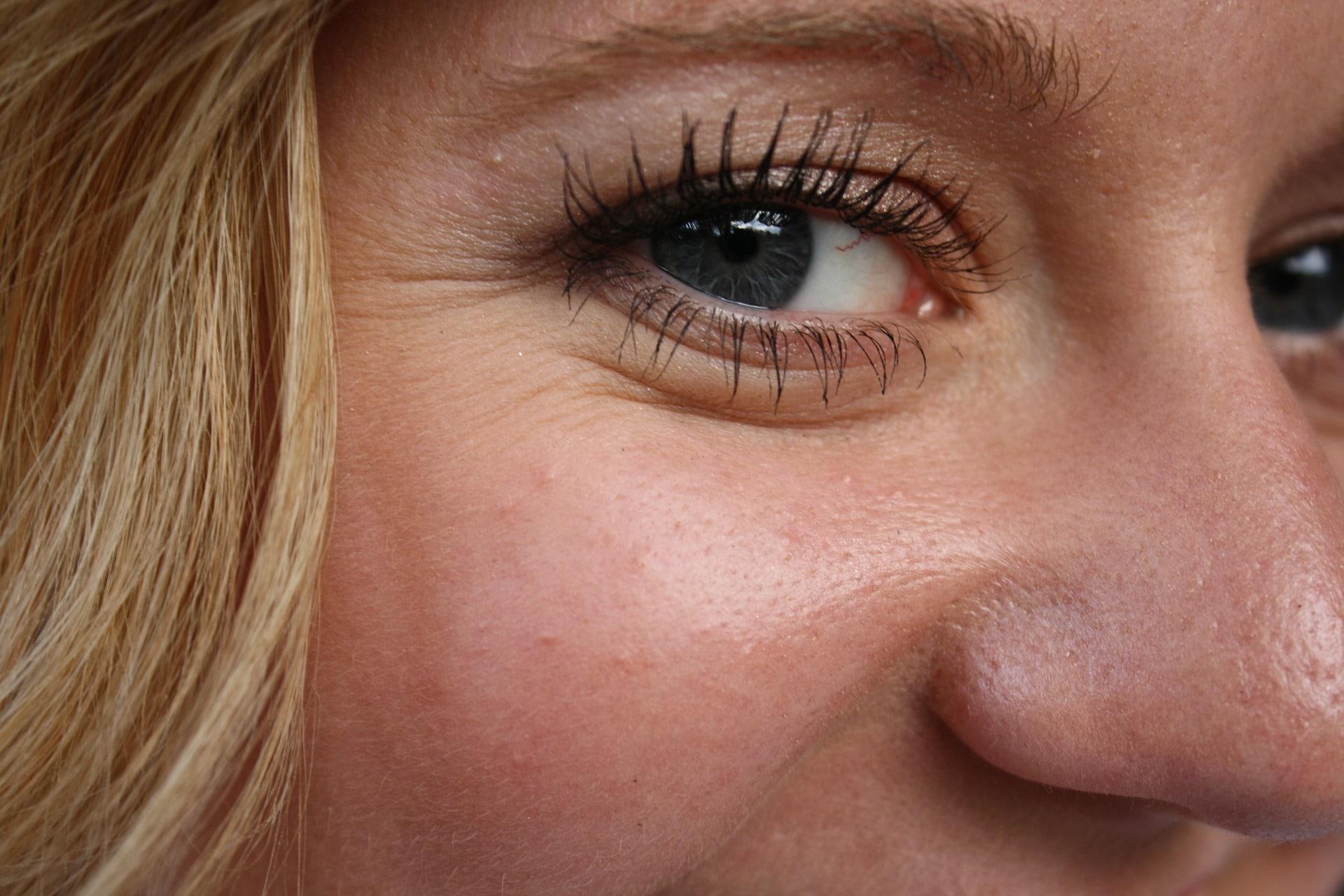 Возрастные изменения при старении: глаза, лицо, шея