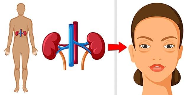 Застой жидкости в тканях