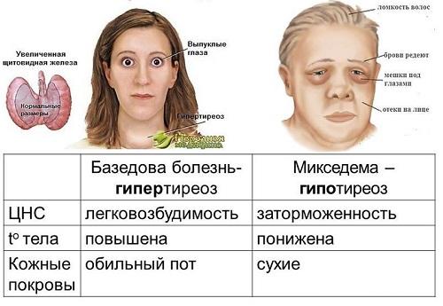 Причины отеков на лице