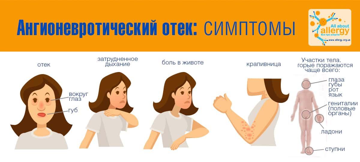 Инфографика - Ангионевротический отек: симптомы