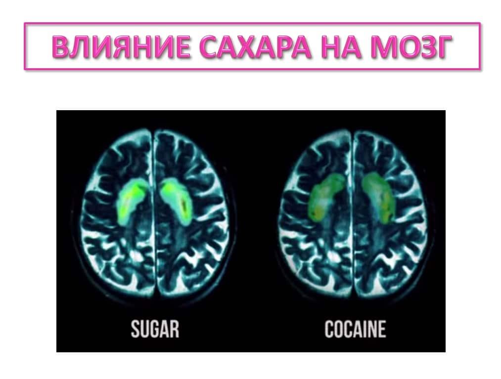 Мозг под влиянием сахара и кокаина: сравнение