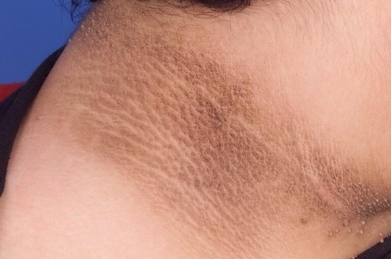Черный акантоз - это не кожное заболевание как таковое, а кожный признак основного состояния или заболевания