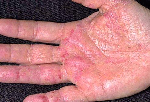 Экзема или дерматит - фото, симптомы