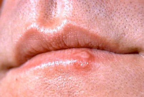 Герпес - симптомы, фото