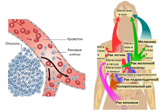 Как поражают метастазы при раке молочной железы