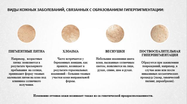 Основные типы гиперпигментации