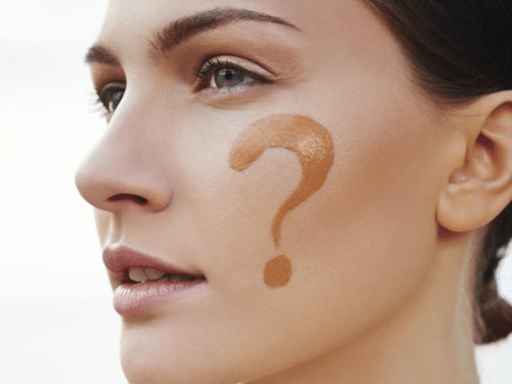 Мелазма: как определить какая форма гиперпигментации у вас?