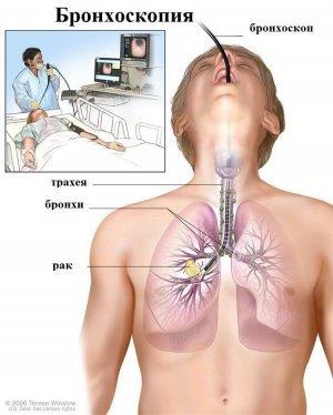 Бронхоскопия - диагностика метастаз рака молочной железы в легких