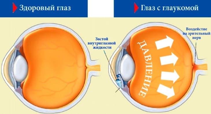Лечение глаукомы: кто входит в группу риска?