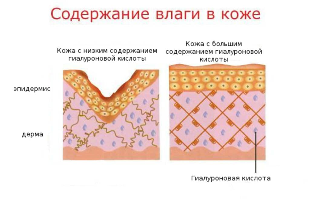 Как определить - сухая кожа или обезвоженная