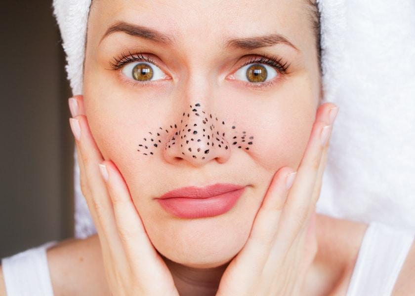Как очистить кожу от черных точек