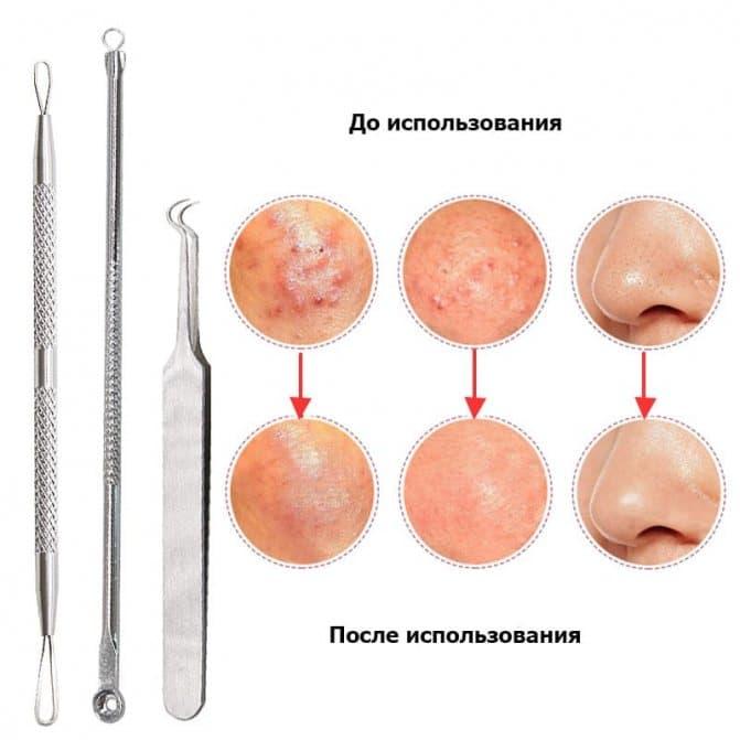 Как правильно делать глубокую очистку кожи петлей